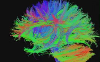 Built-in 'brain calendar' provides insight into schizophrenia